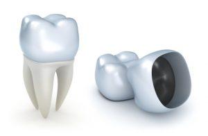 istock_000020006674xsmall-dentalcrown